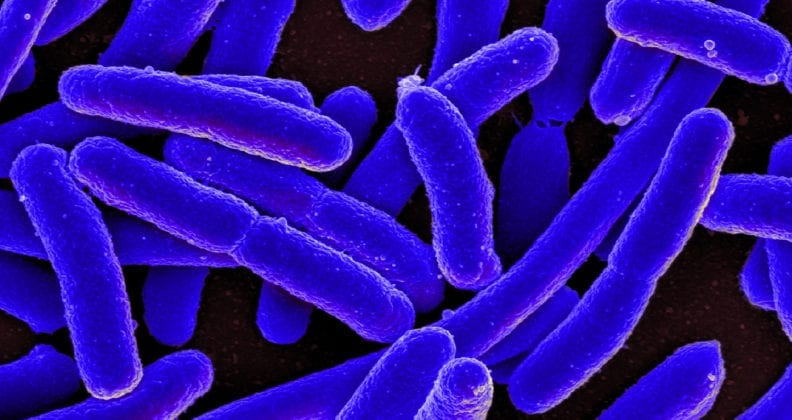 Colorised scanning electron micrograph of bacteria.